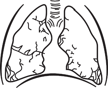 lungs-148166_640