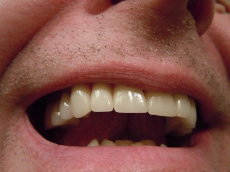 Crown Lengthening towards Resolution of Gum Disease