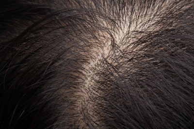 ProFollica – Natural Hair Growth System