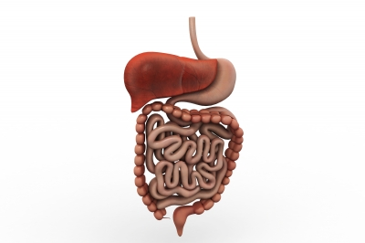 Complications From Diverticulitis