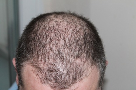 hair-248050_640