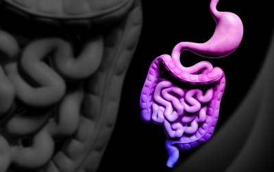 Caring For Yourself After Diverticulitis