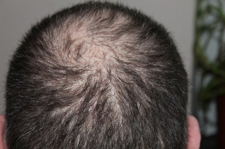 Things You Need to Know About Hair Loss