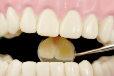 Reduction of Pocket Depth versus Gum Disease