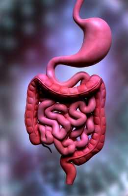 Risk Factors For Diverticulitis and Simple Steps To Prevention