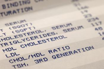 Cholesterol Link To Alzheimer's