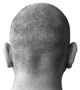 How to Cope with Baldness