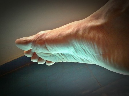 Prevention of the Restless Legs Syndrome
