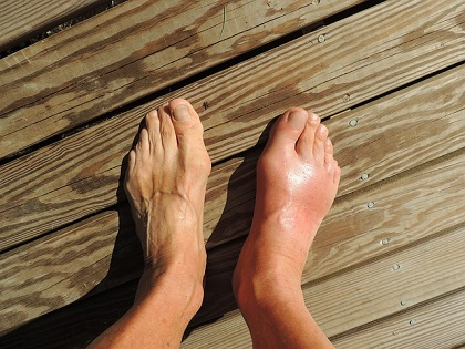 What Can Trigger Gout?